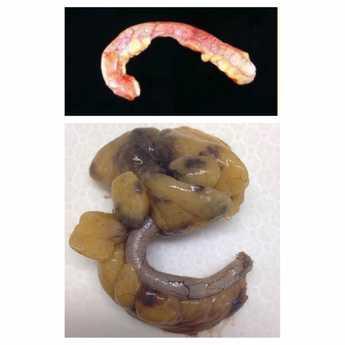 2 appendices