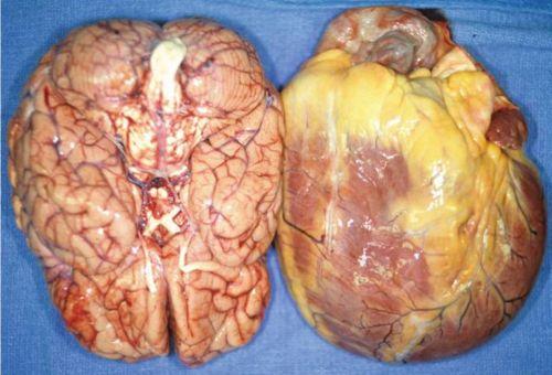 fat heart size of brain