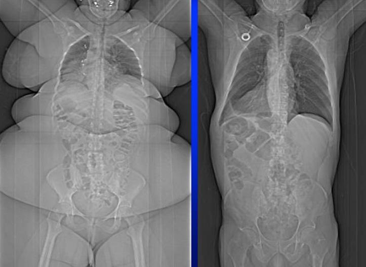 fat person x ray